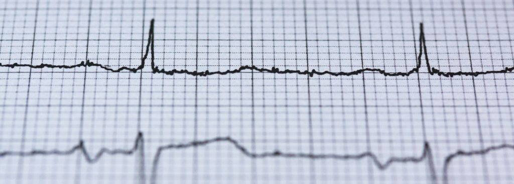 Guidance on how is afib diagnosed