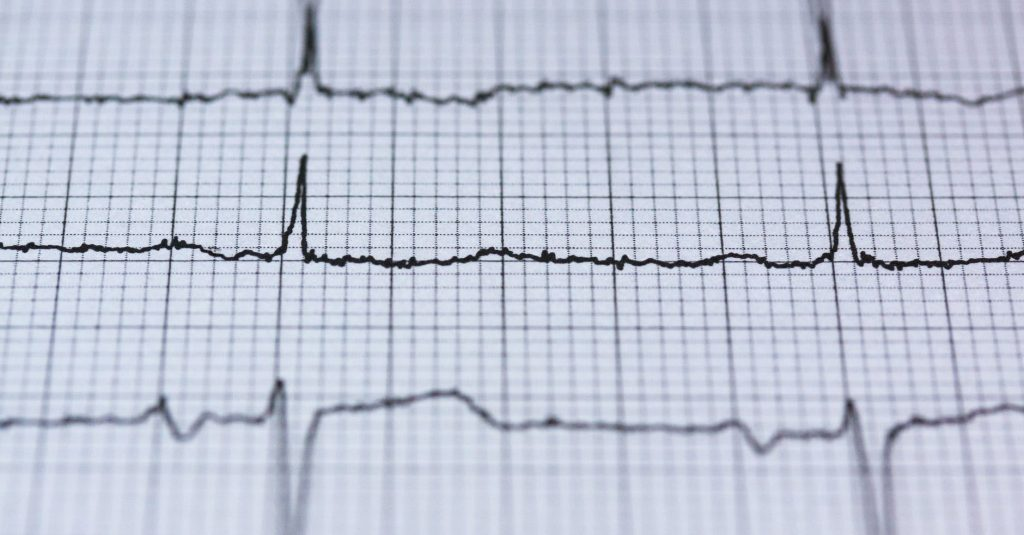 How to read ECG Heart Monitor Lines